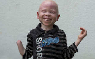 Единственный в мире: в Индонезии выпустили на волю орангутанга-альбиноса